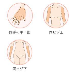 腕全セット脱毛 施術箇所 3箇所